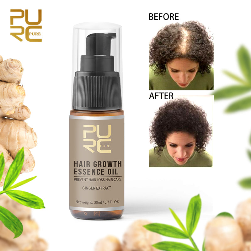 Fast Hair Growth Essence Oil Hair Loss Treatment  20ml - asheers4u