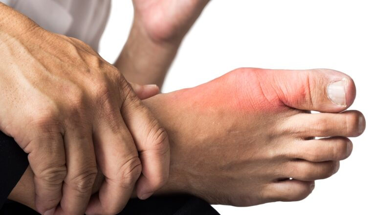 Symptoms of Gout - The Brothers Green
