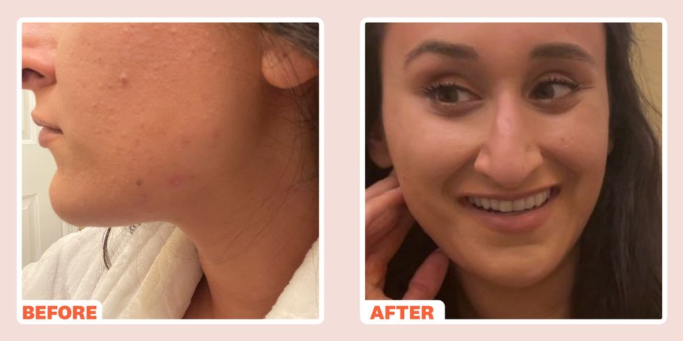 Check Out our latest feature in Women's Health...'How I Cleared My Skin When I Learned PCOS Was Causing My Cystic Acne'