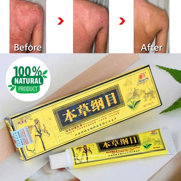 Quick Cure (Advanced Psoriasis & Eczema Natural Herbal Cream)
