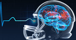 Introduction to Physical Therapy Evaluation and Treatment of Concussion