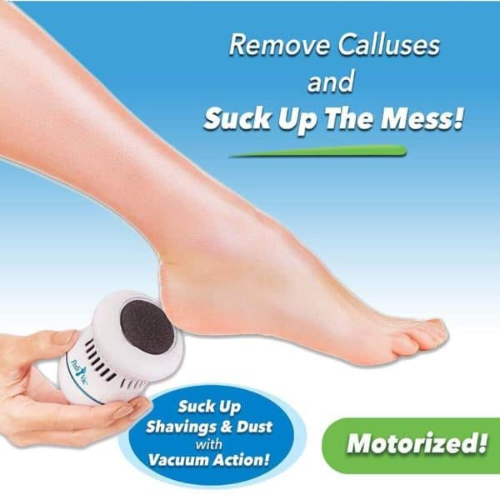 03-22T22:22:35-08:00 *** Electric Pedivac-remove your callus easily