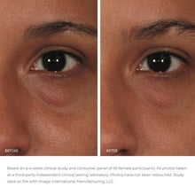 Load image into Gallery viewer, Image Skincare ORMEDIC Balancing Eye Lift Gel