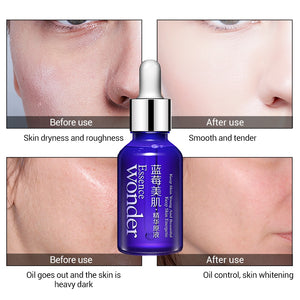 Wonder Essence - Blueberry Collagen Hyaluronic Serum - Anti Wrinkle + Moisturizing