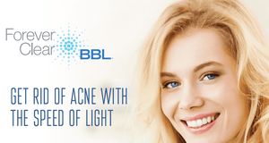 Forever Clear BBL for Acne