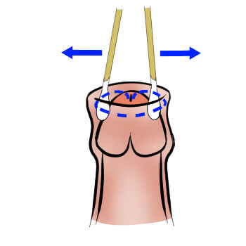 Foreskin stretching with Q-tips