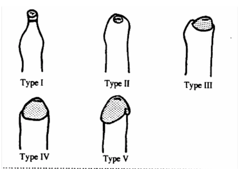 Phimosis stages - Kayaba classification