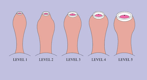 Phimosis Severity levels