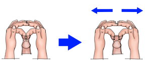 Phimosis stretching using 2 fingers