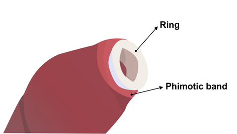 Phimosis rings for foreskin stretching
