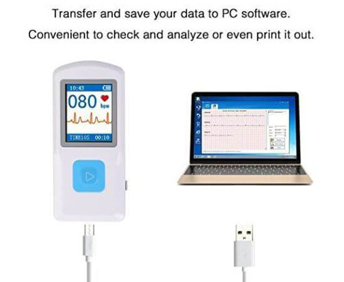 FL10 Portable ECG Monitor with Bluetooth, APP and PC software