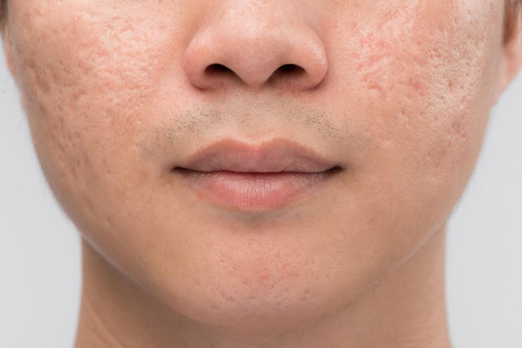 Microneedling for Acne Scars: Reducing acne scars by microneedling