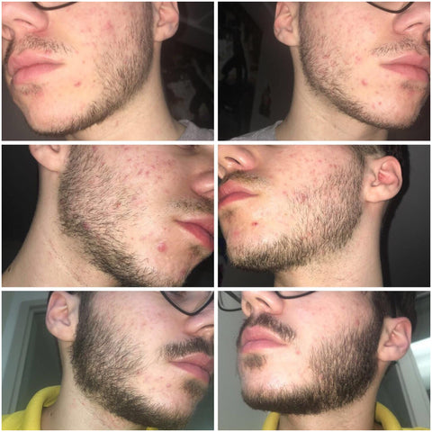 Grow up after men do break why beards a Why Do