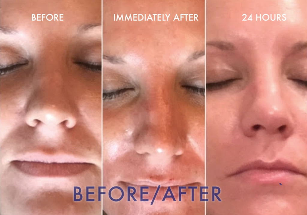 Before and after results of microneedling