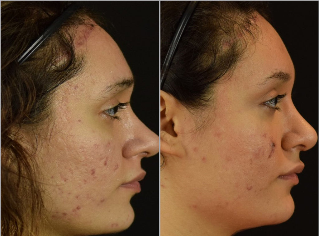 Microneedling before and after image