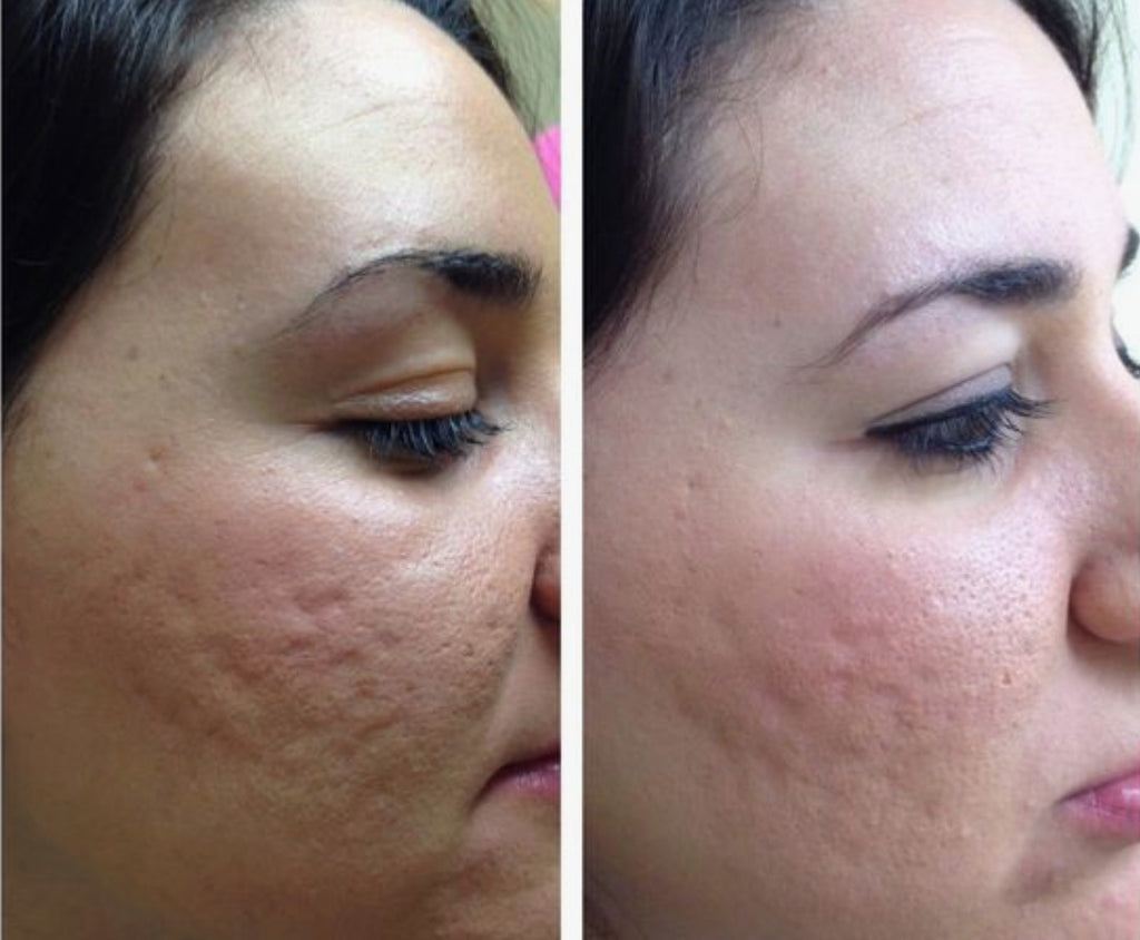 Image showing before and after effects of microneedling