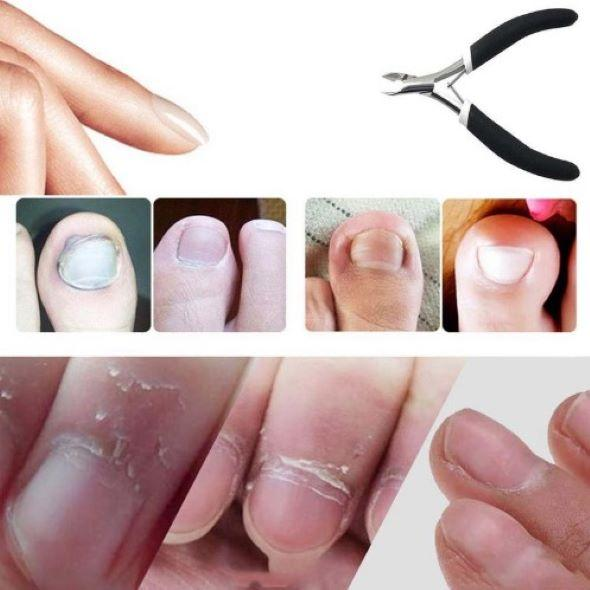 Medical-Grade Toenail Clippers for Thick or Ingrown Toenails