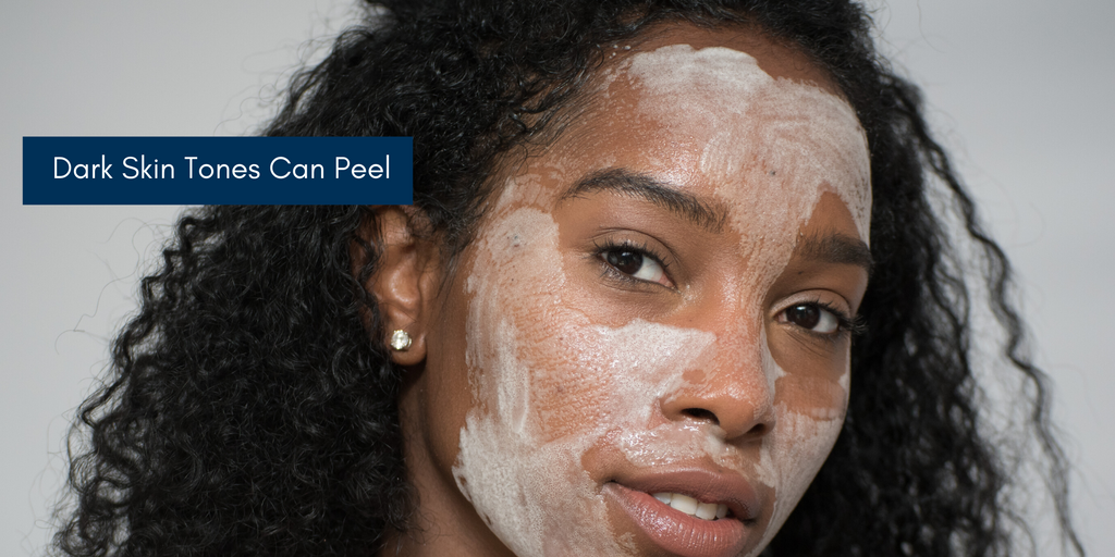 Darker Skin Tones Can Benefit From Skin Peels Too