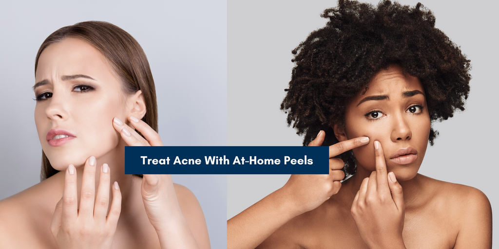 Treat Acne with Skin peels