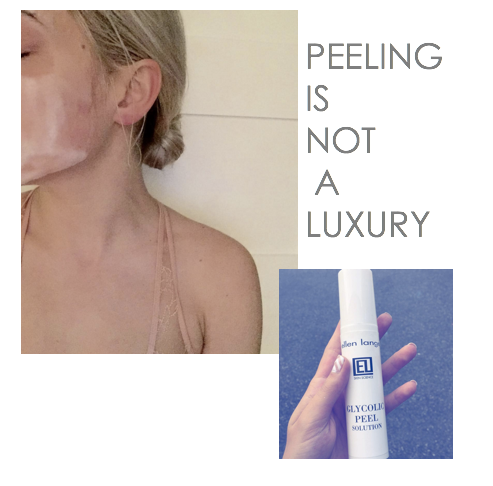 Peeling is not a luxury, it is a step often skipped