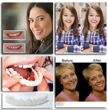 Get white teeth at moment!! No shots!No Drilling! No Pain! - Allurstyle
