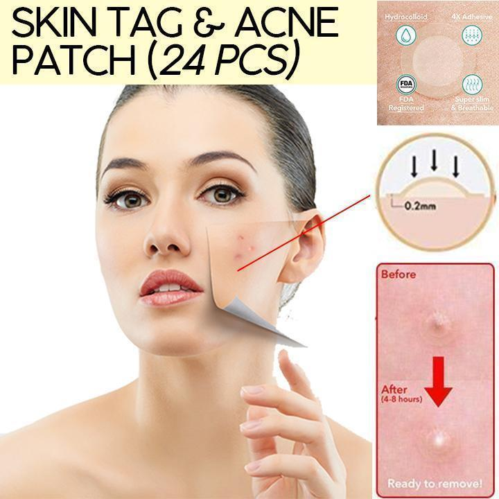 Skin Tag & Acne Patch (24 PCS)