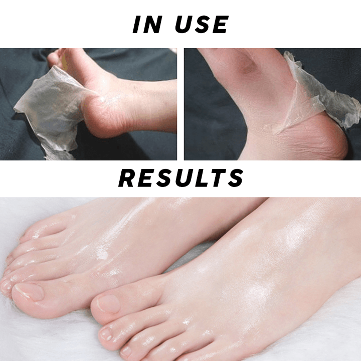 Foot Peeling Mask