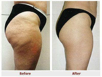 Anti-Cellulite Oil