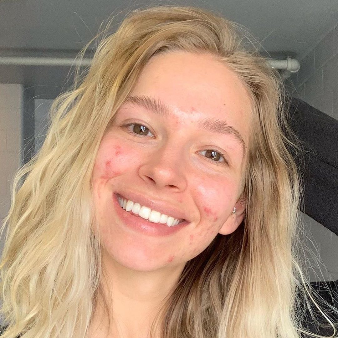 A blonde smiling girl with some acne