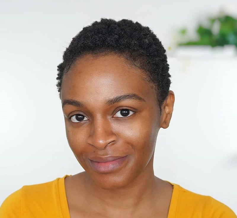 My Dark-Skin Journey w/Hyperpigmentation + Dark Spots