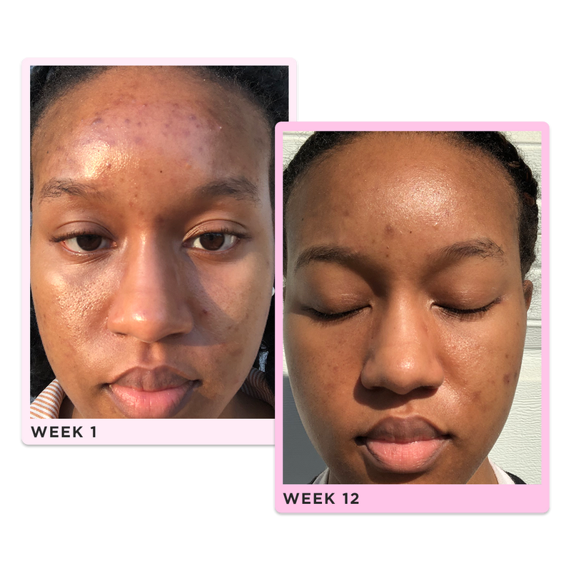 before and after showing great reduction in hyperpigmentation