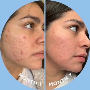 SKIN DISCIPLINE - First 2 Months for $40