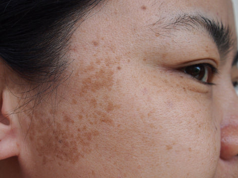 Woman with patchy brown melasma
