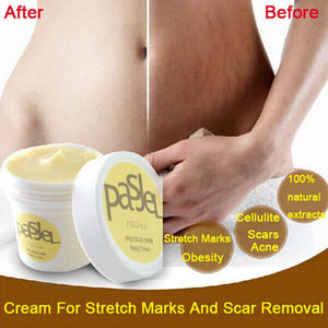 Pasjel Stretch Mark Cream