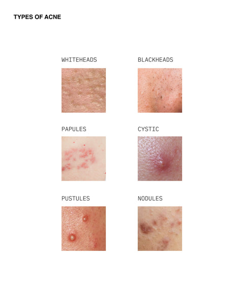 Types of acne: whiteheads, blackheads, cystic, papules, pustules, nodules
