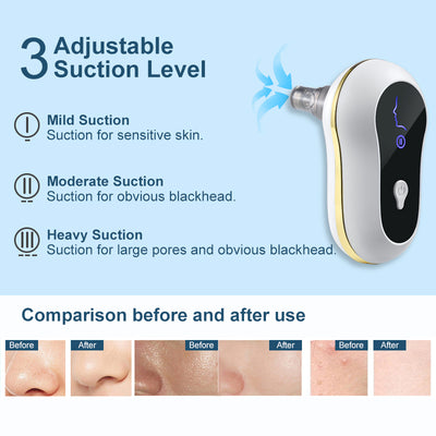 Suction Blackhead Remover Kit Electric Facial Pore Cleanser Acne Cleaner