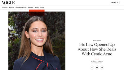 Iris Law Opened Up About How She Deals With Cystic Acne