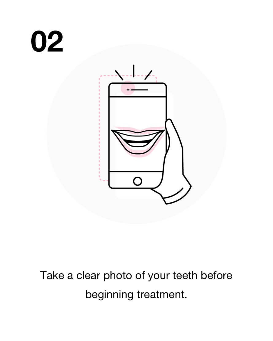 Take a clear photo of your teeth before beginning treatment