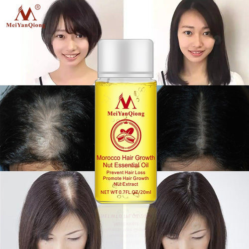 1 PCS Hair Growth Essence Hair Loss Liquid Natural Pure Nut Essential Oils Promote Hair Growth Serum Health Care Beauty Essences