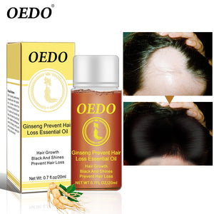 20ML Ginseng Hair Growth Essence Preventing Hair Loss Liquid Damage Hair Repair Treatment Dense Fast Restoration Hair Growth