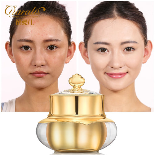 30g Arbutin Face Whitening Cream Anti Aging Wrinkles Acne Treament for Face Skin Care Young Beauty Moisturizer Facial Lotion