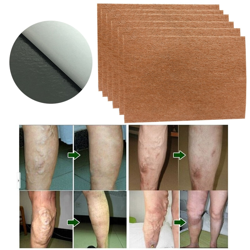 9 Pcs Spider Veins Varicose Treatment Plaster Varicose Veins Cure Patch Vasculitis Natural Solution Herbal Patches
