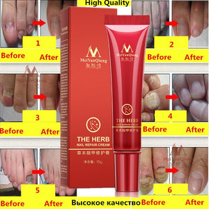 Herbal Nail Treatment Onychomycosis Paronychia Anti Fungal Nail Infection Good Result Chinese Herbal Toe Nail Fungus Treatment