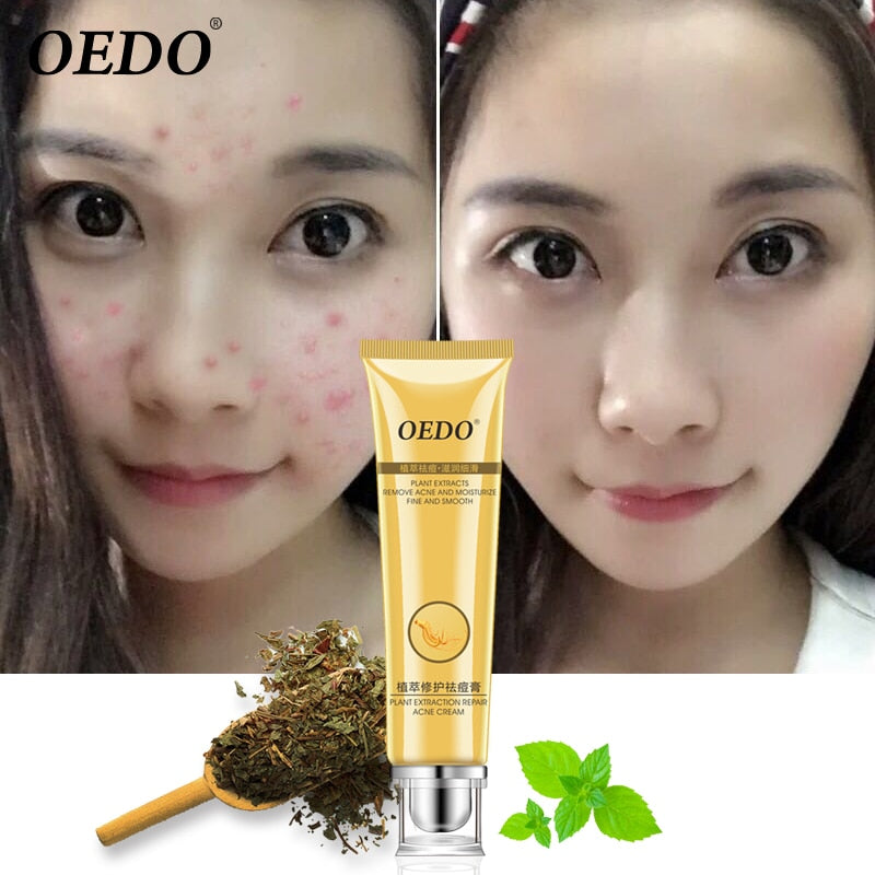 Herbal plant extract repair cream remove acne marks repair rough pores deep cleansing facial horny facial skin care cream 20g