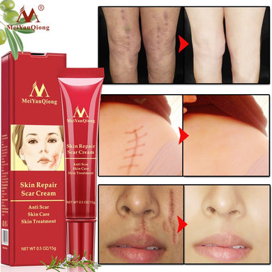 MeiyanQiong Acne Scar Removal Cream Skin Repair Face Cream Acne Spots Acne Treatment Blackhead Whitening Cream Stretch Marks