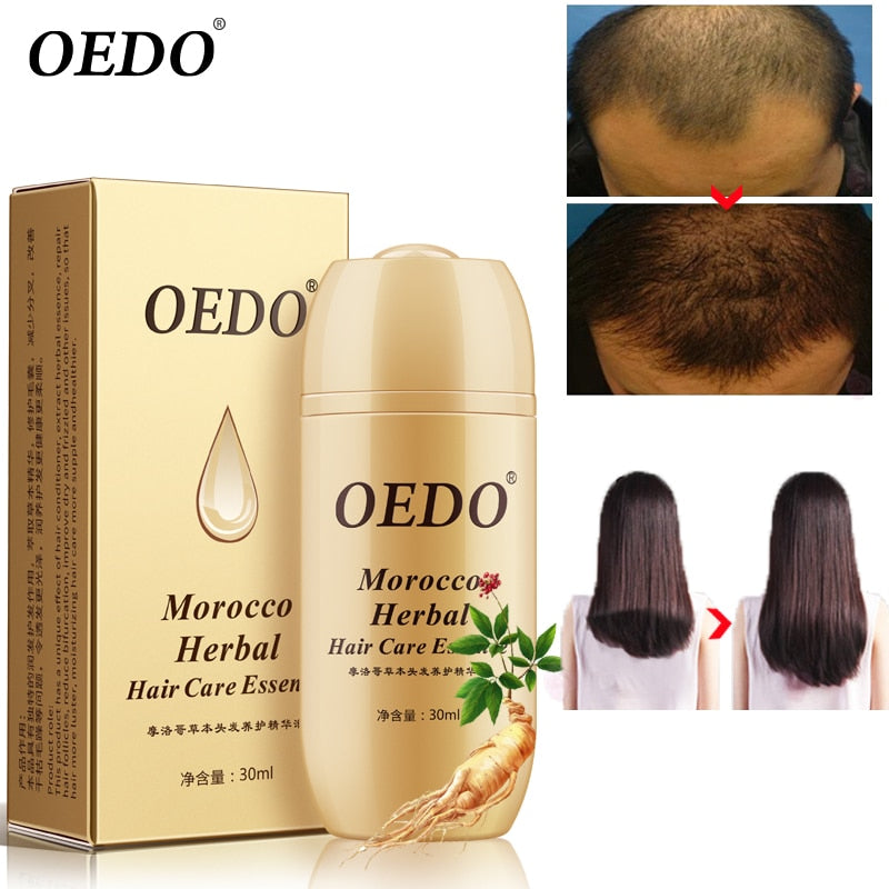 Moroccan Herbal Ginseng Hair Growth Essence Oil Quick Repair Hair Root Prevention Hair Loss Product Repair Curly Dry Scalp Care