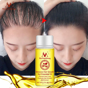 Andrea Hair Growth Products Ginger Oil Hair Growth Faster Grow Hair Ginger Shampoo Stop Hair Loss Treatment