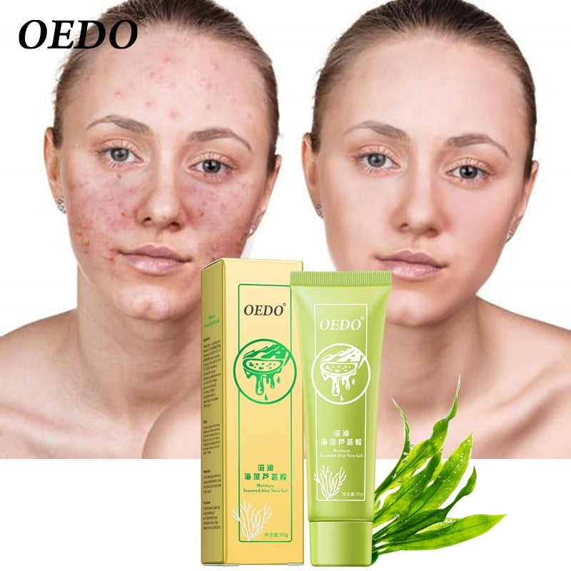 Seaweed Aloe Vera Gel Hydrating Whitening Day Creams Acne Anti Aging Wrinkle Collagen Whitening Facial Cream Brighten Skin Care