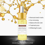 VIBRANT GLAMOUR Crocodile Repair Scar Face Serum Removal Acne Scar Whitening For Spots Acne Treatment Stretch Marks Skin Care