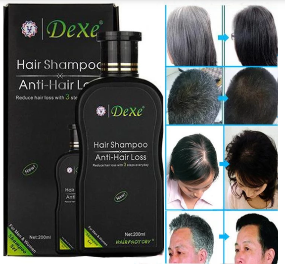 DEXE Anti-Hair Loss Shampoo-HOT